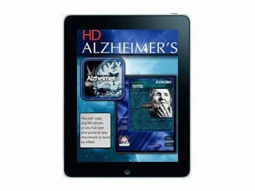 Britain's Alzheimer's Society